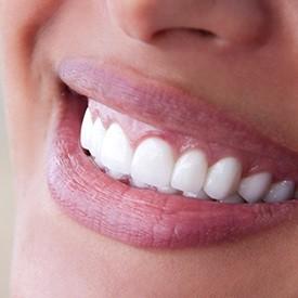 Cosmetic Dentist Colorado Springs Smile Makeover