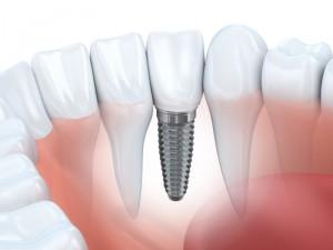 dental implants colorado springs